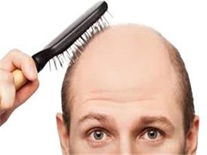 احیای موهای ریخته با مالیدن آب پیاز بر سر