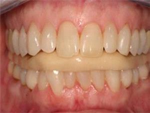 وقتی دندانها خواب خوش را میربایند