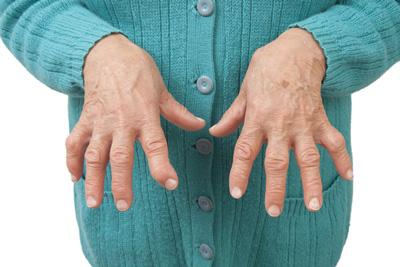 درد مفاصل , تورم و سفتي مفاصل