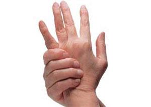 التهاب مفاصل, درمان آرتروز