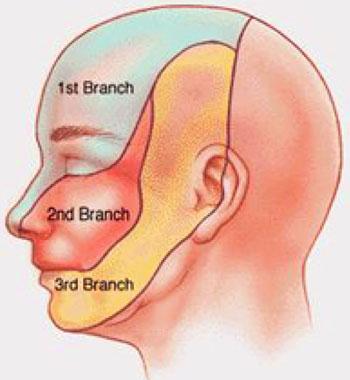 بيماري درد عصب سه قلو , علل درد عصب سه قلو