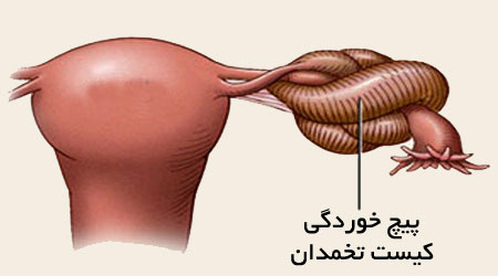 علائم پیچ خوردگی تخمدان,علایم پیچ خوردگی تخمدان