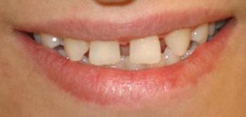 درمان دندان های فاصله دار,ترمیم دندان های جلویی