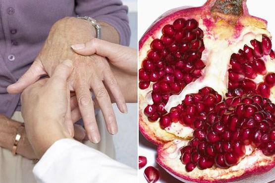 «آرتروز» را اينگونه درمان کنيد/ علائم هشدار دهنده