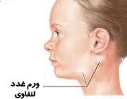 بیماری بوسیدن,بیماری بوسیدن چیست,بیماری مونونوکلئوز