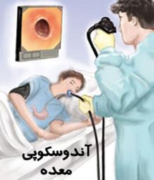 فوایدگذاشتن بالون داخل معد بیماری معده درد آندوسکوپی