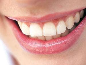 دندان,پیشگیری از پوسیدگی دندان,علل پوسیدگی دندان