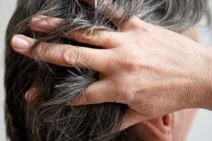مراقبت از موها,تقویت مو,داروهای گیاهی تقویت مو