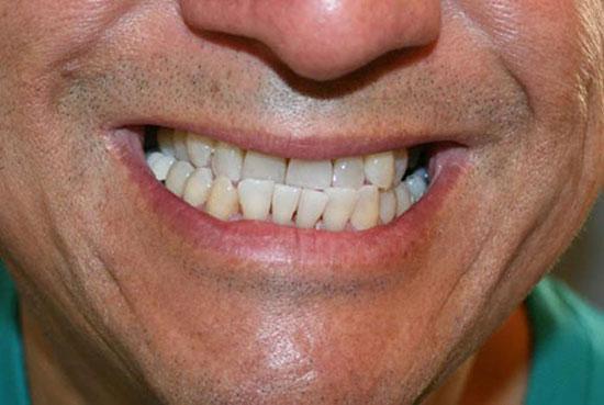 انواع ناهنجاری دندان ها