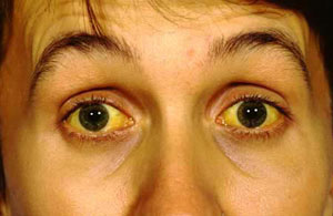 زردی چهره درمان دارد؟
